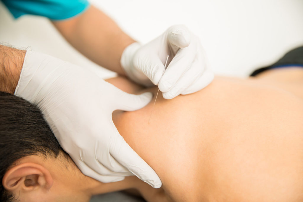 Dry needling is an effective technique to limit pain points on your body | Redbud Physical Therapy